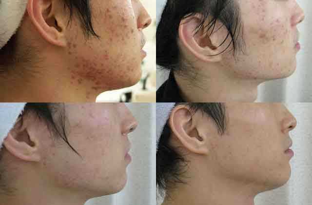 フェイスラインニキビを繰り返す肌の治し方・解消例