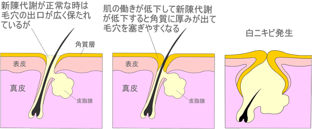新陳代謝がスムーズにおこなわれず毛穴の出口の角質が肥厚すると白ニキビが出来やすくなります
