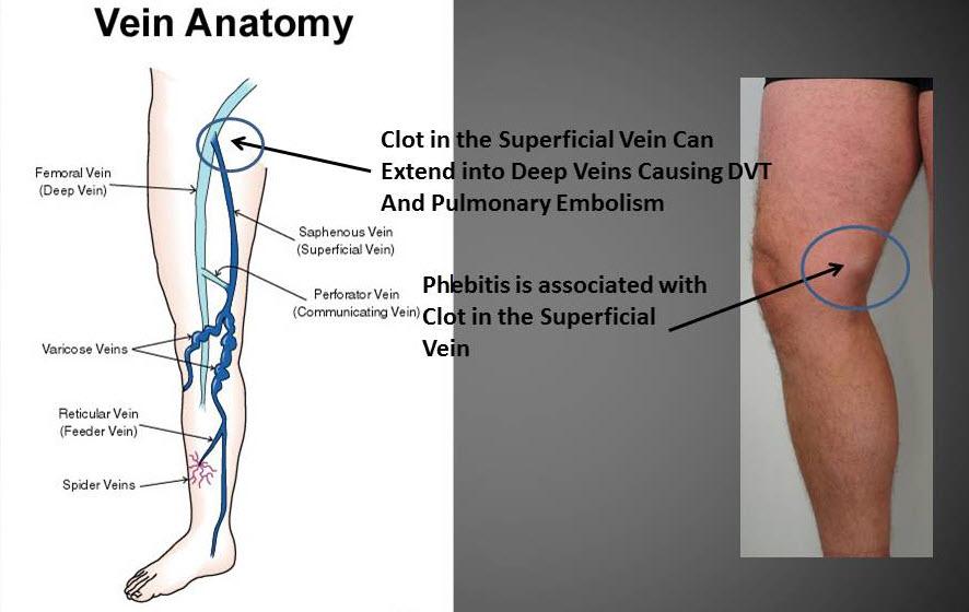 Can Doppler Ultrasounds Find Leg Clots Varicose Vein Treatment In