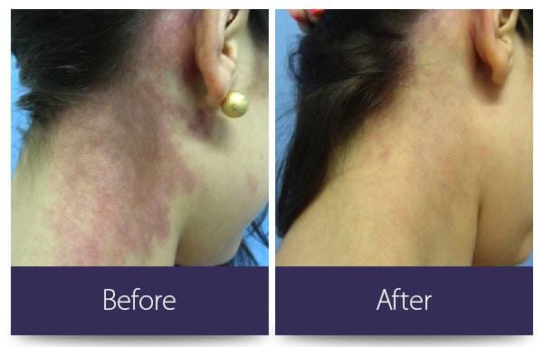 Vascular lesion neck