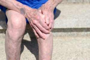 injured varicose vein
