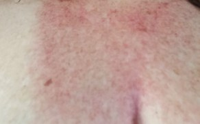 2 days after treatment with the Halo Laser