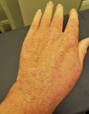 my hand immediately after treatment, look at the white dots!