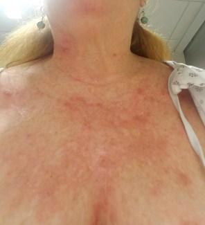 blotchy skinn after pico genesis