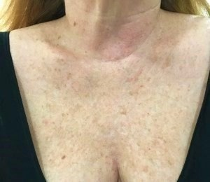 My neck before laser treatments