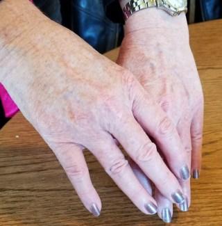 Alison Blackman my hands post pico genesis treatments
