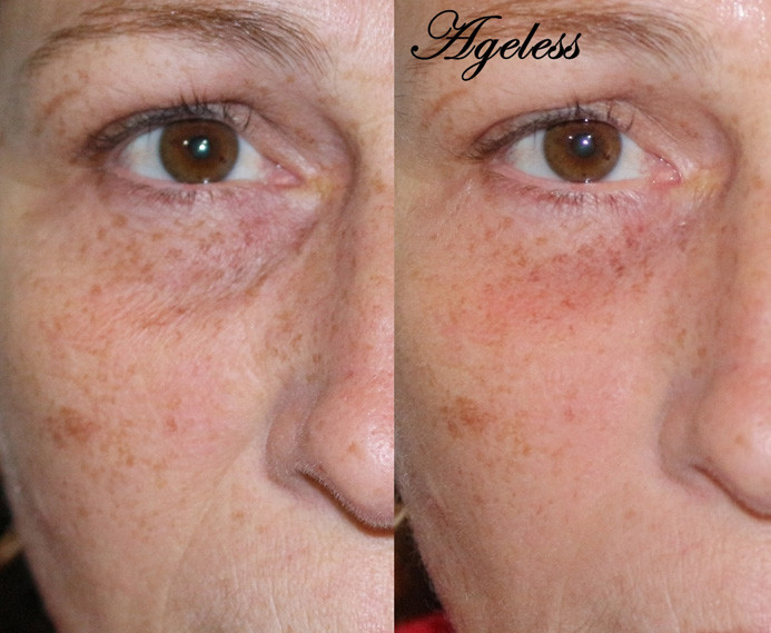 Instantly Ageless - Resultado