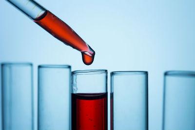 CHCM en un Analisis de sangre
