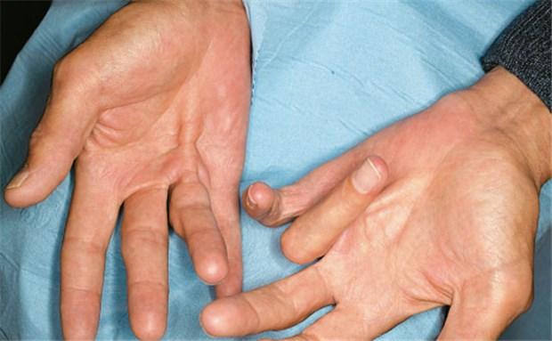strahlen gegen streckhemmung der finger