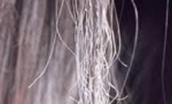 cabelo elastico como tratar microexame