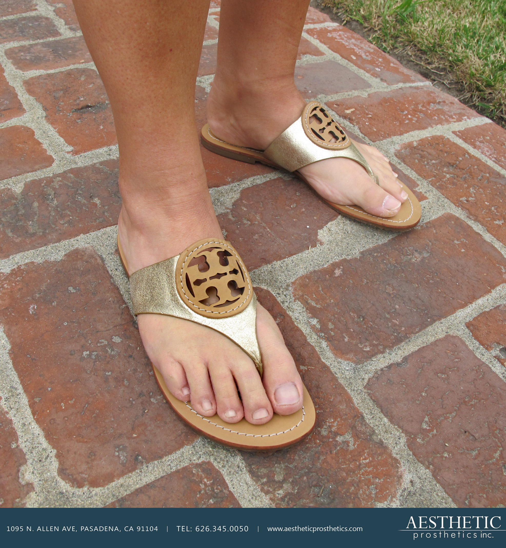 Caucasian woman wears Tory Burch sandals and highly realistic silicone prosthetic partial foot on her right foot made by aesthetic prosthetics in pasadena, california southern california los angeles