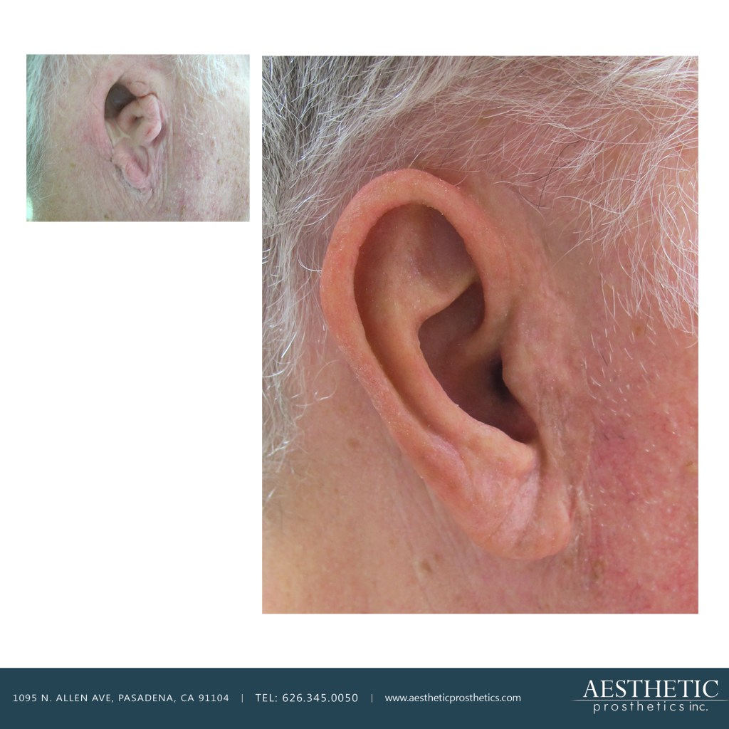 older Caucasian man wears adhesive retained realistic silicone fake prosthetic ear made by aesthetic prosthetics in pasadena los angeles southern california