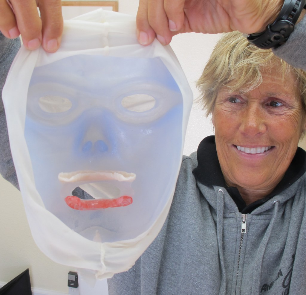 impression taking silicone mask custom mask aesthetic prosthetics diana nyad