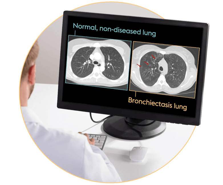 Bronchiectasis HRCT scan