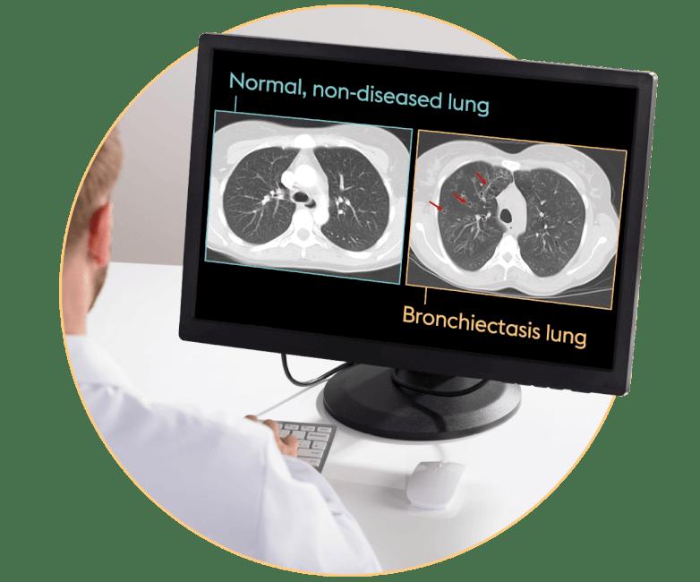 CT scan diagnosis