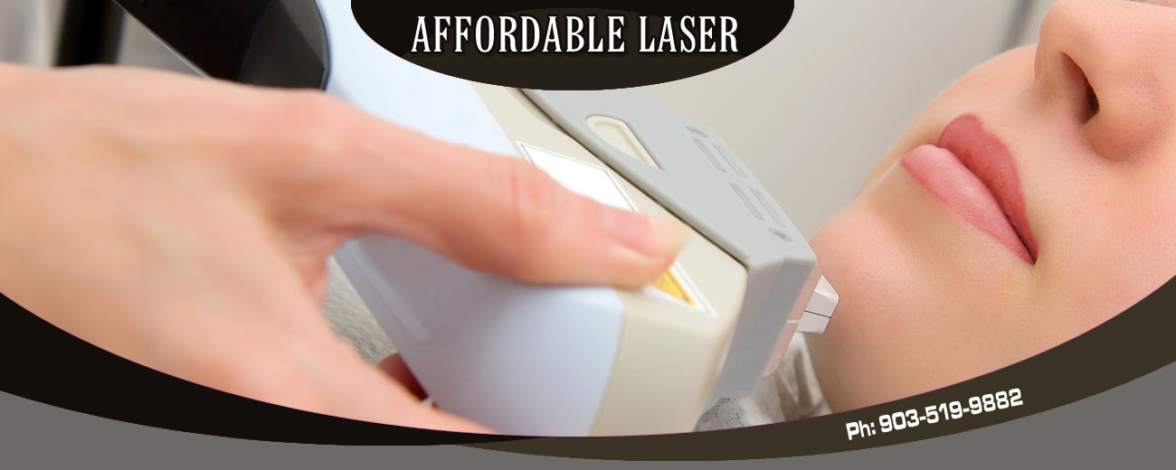 Plucking Hair Removal Laser