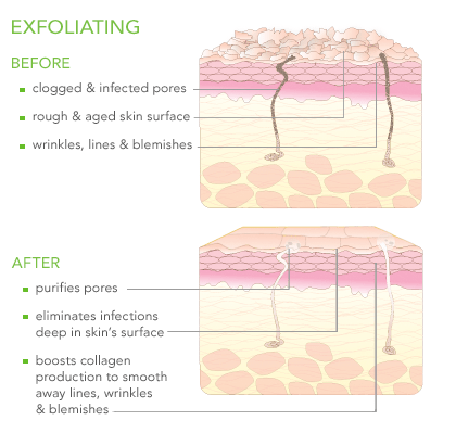 diagram on exfoliated skin