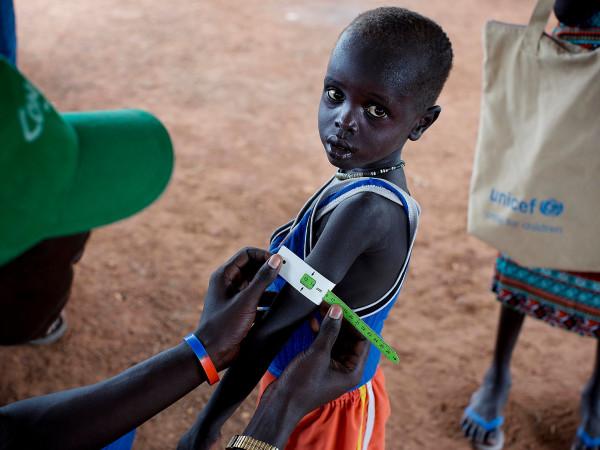 Uno dei bimbi soggetti alla vaccinazione contro il morbillo