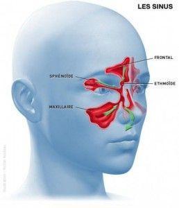 Comment se débarrasser de la sinusite naturellement?