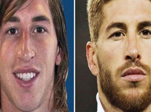 Football: Quelques joueurs qui ont fait recours à la chirurgie esthétique