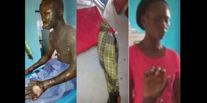 Nigeria: Une mère brûle son fils de 13 ans (photos)