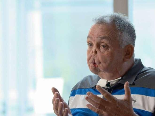Canada: Une greffe totale du visage réussie pour la première fois (photos)
