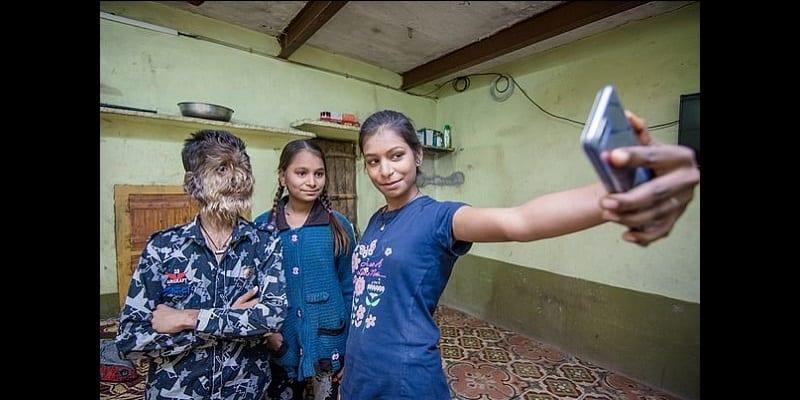Inde: Découvrez Lalit Patidar, le garçon de 13 ans atteint du «syndrome du loup-garou» (photos)