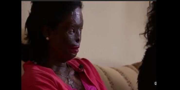 L'horrible histoire d'Atsade Nigese: l'Éthiopienne défigurée et aveuglée par son mari (photos)