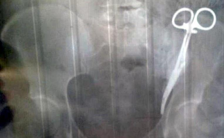 Photo of Russian woman walks around for 23 years with surgical clamp in her stomach