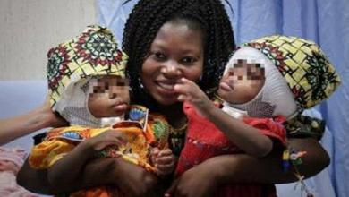 Photo of Doctors in Vatican hospital separate Siamese twins from Central African Republic
