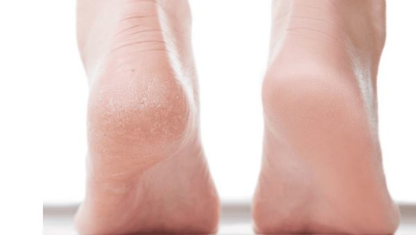 5 home remedies to cure cracked heels