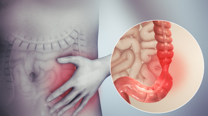 Everything to know about IBS