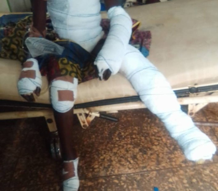 10-year-old boy thrown into fire over alleged stealing of uncooked rice in Ebonyi