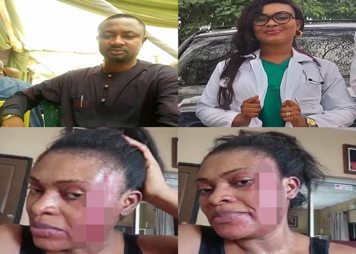 Lady calls out husband, Pius Angbo of Channels TV for allegedly beating her mercilessly after birth