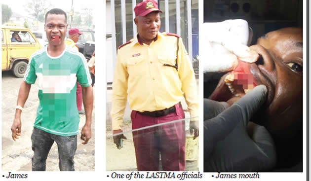 How hoodlums assisted LASTMA, police personnel to knock out driver's teeth in brutal attack