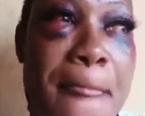 Video: Battered kidnap victim narrates horrific experience in kidnappers' den