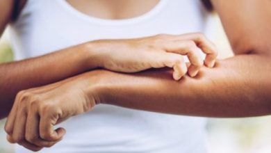 4 possible causes of unbearably skin itchy & how to stop it