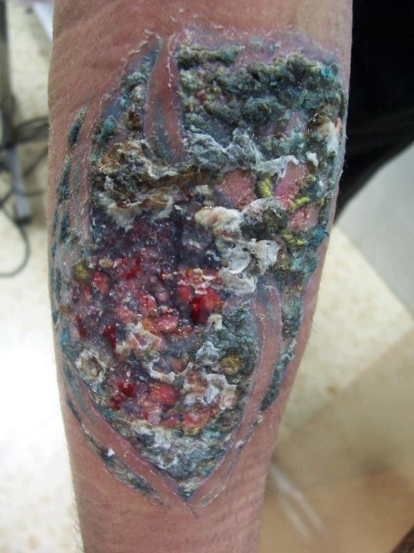 Infected tattoo