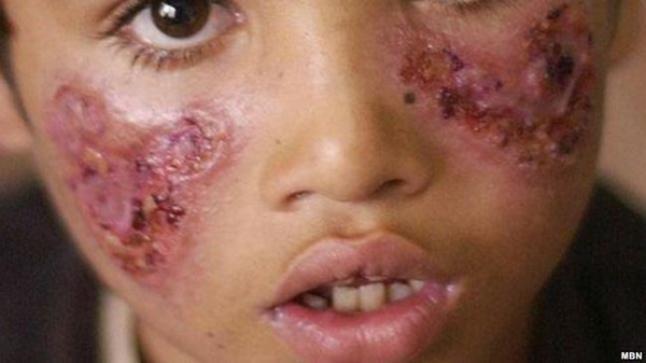 """وباء """"اللشمانيا"""" ينتشر بأكادير بشكل مقلق.. وعدد الضحايا في تزايد"""