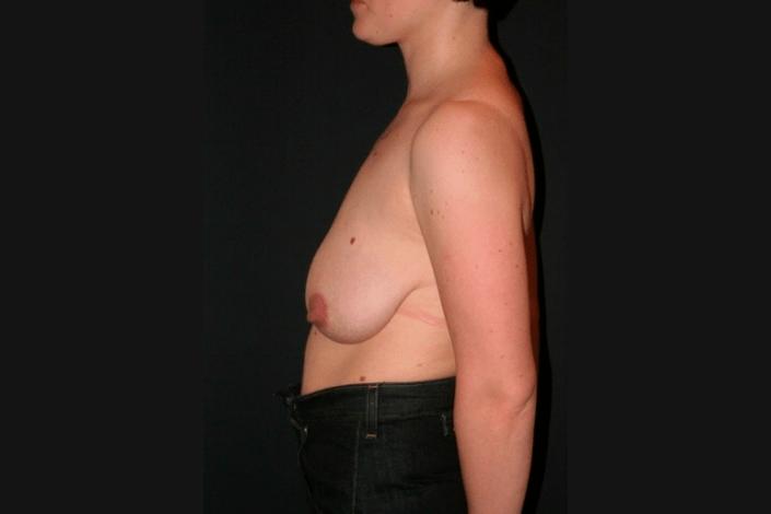 Brystløft før billede