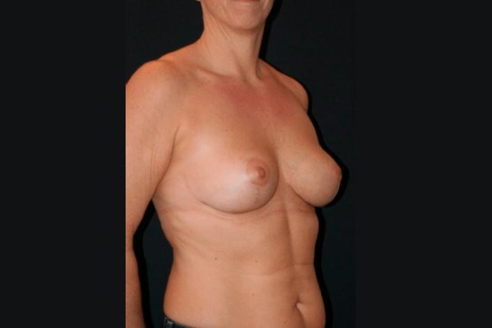 Brystløft efter billede