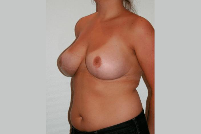 Brystreduktion efter billede
