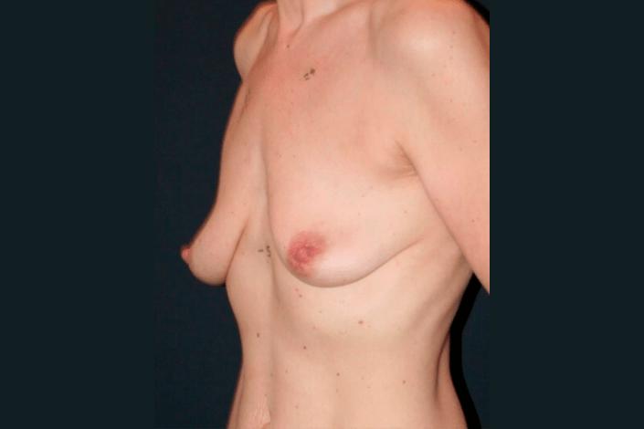 Brystforstørrelse før billede
