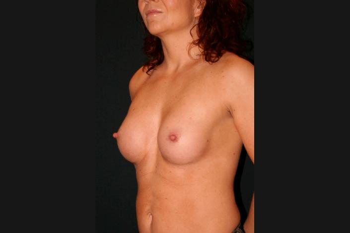 Efter brystforstørrelse billede