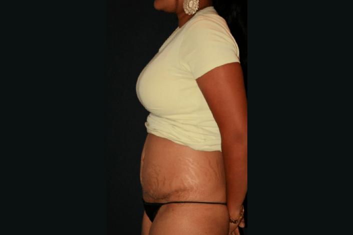 Efter maveplastik billede