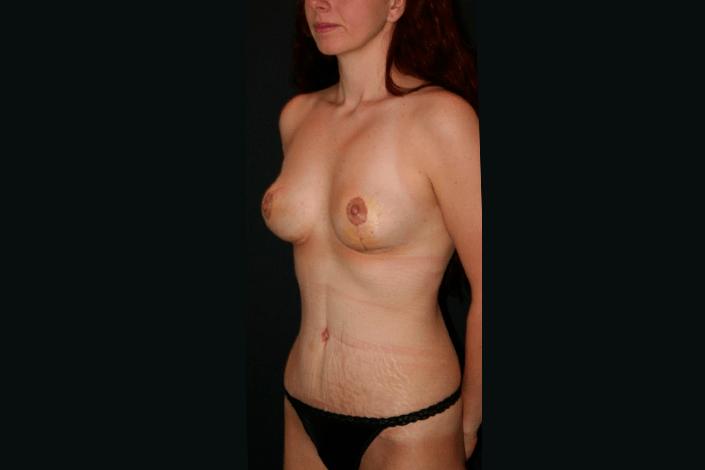 Efter mommy makeover billede