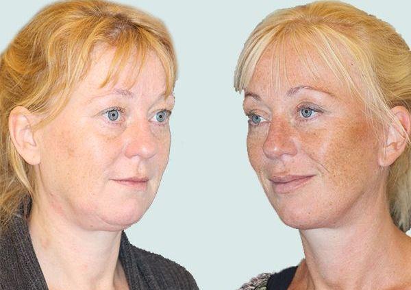 Ansigtsløft før og efter billede