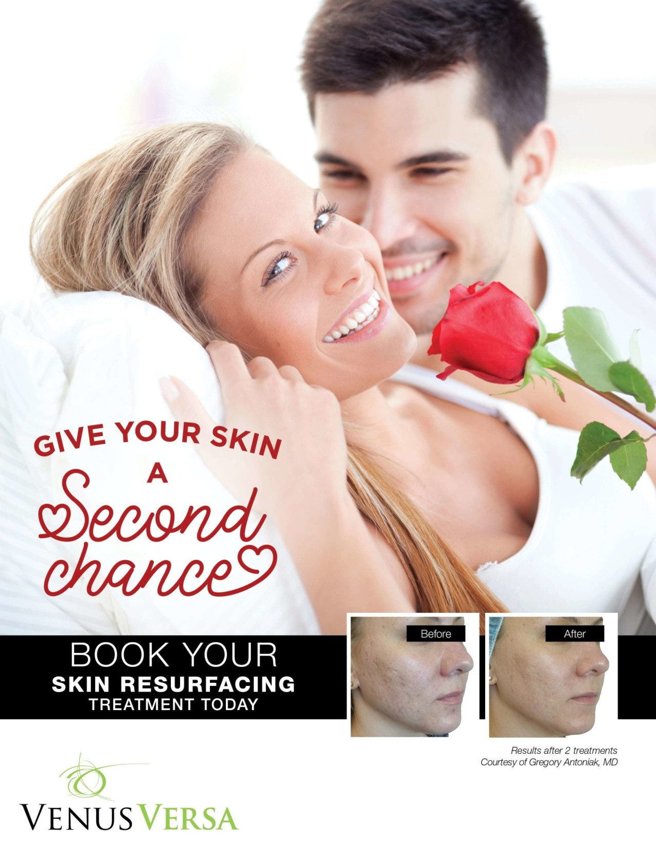 Sun Spot Removal Skin Correction Services