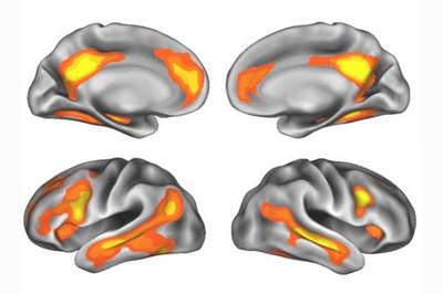 cervellembaras