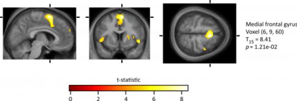 En el experimento de Zeki y Romaya, varias áreas del cerebro se activan de manera especial cuando los voluntarios del experimento miraban las caras de las personas odiadas.